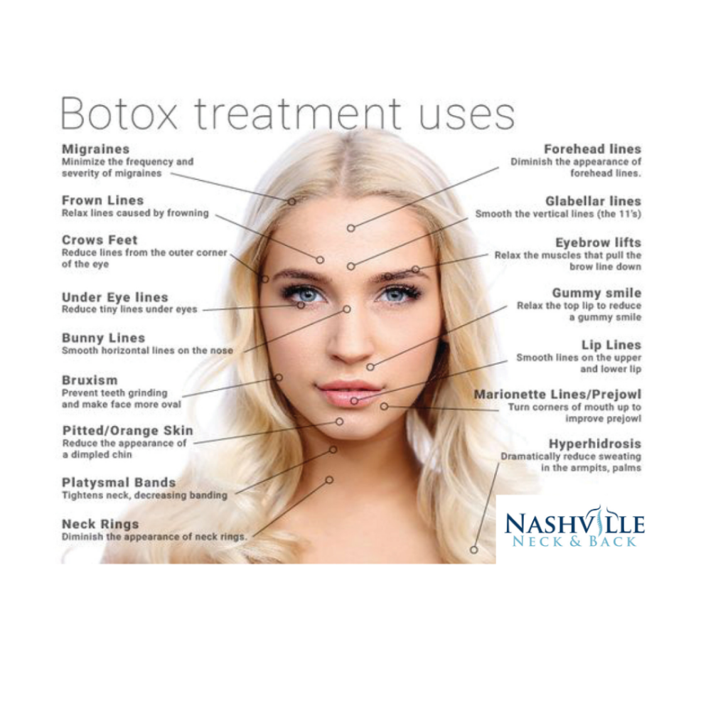 Botox Treatments Are Available At Nashville Neck And Back